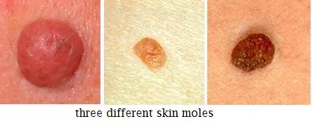 papilloma and wart paraziti pe fata