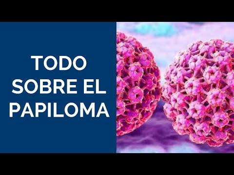 cancerul de san stadiul 2