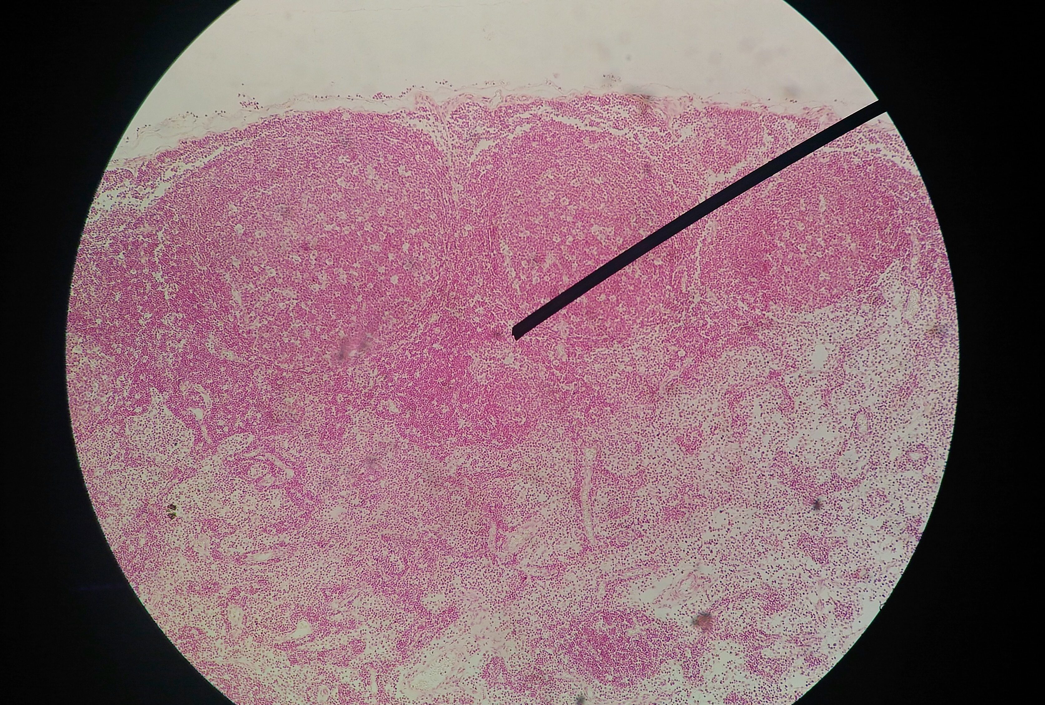 mouth and throat cancer from hpv