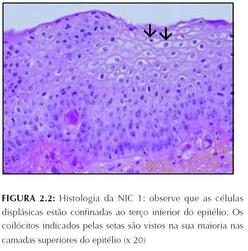 cancer pulmonar tratament febra detoxifiere celulara