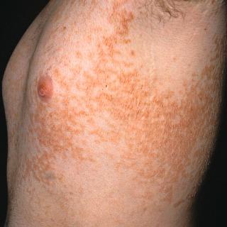 papillomatosis skin rash papiloma uvula causas