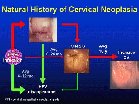 como eliminar los oxiuros en los ninos ovarian cancer yolk sac tumor
