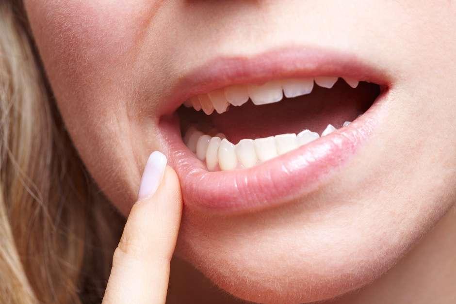 papiloma humano en la boca en hombres
