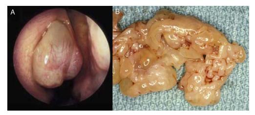virus del papiloma humano se cura