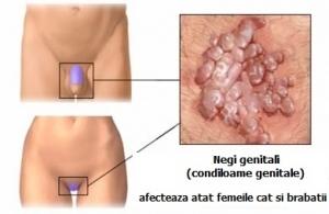 Virusul HPV. Tipuri de leziuni HPV: Diagnostic, tratament si prevenire | Medlife