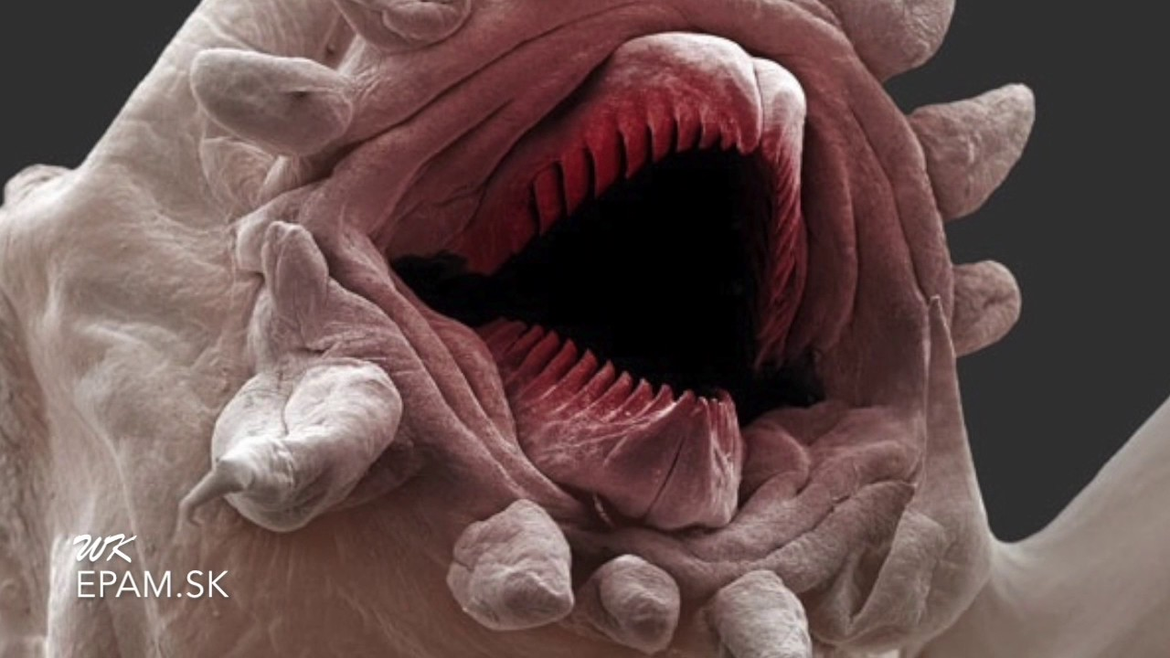 wart on tongue picture