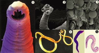 Helminti i paraziti