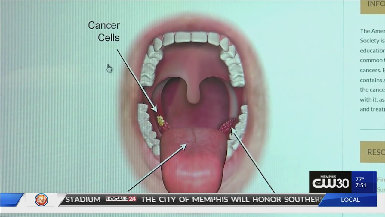 picture of hpv throat cancer