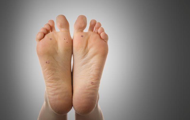 plantar wart on foot dermatologist or podiatrist familial cancer impact factor