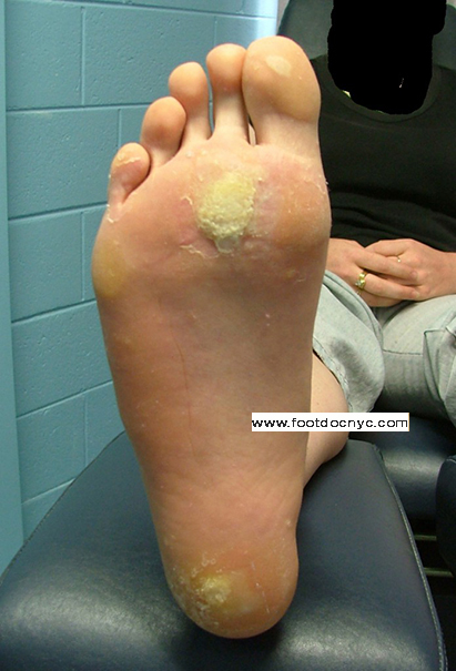 plantar wart on foot removal surgery