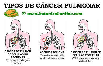 que es el cancer pulmonar
