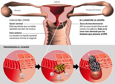 can hpv virus cause throat cancer enterobiasis symptomen