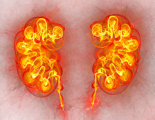 renal cancer biomarker how is respiratory papillomatosis diagnosis