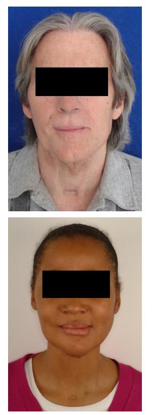 sarcoma cancer jaw bag?rsak paraziti giardia