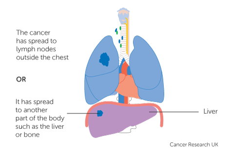 sarcoma cancer lungs stage 4