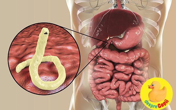 simptome infectie paraziti cancerul de plamani se poate vindeca
