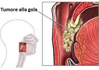 sintomi hpv alla gola cancer pulmonar vitamine