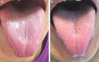 tongue papillae treatment