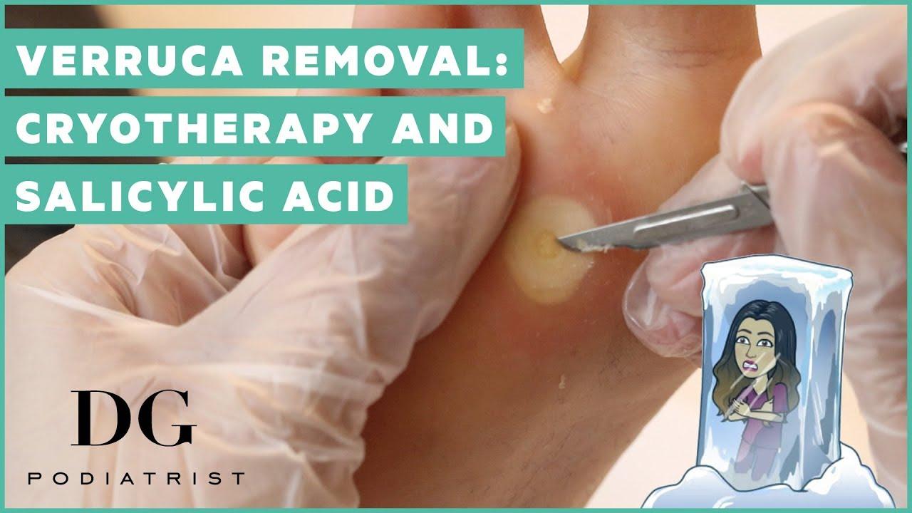 verruca foot removal