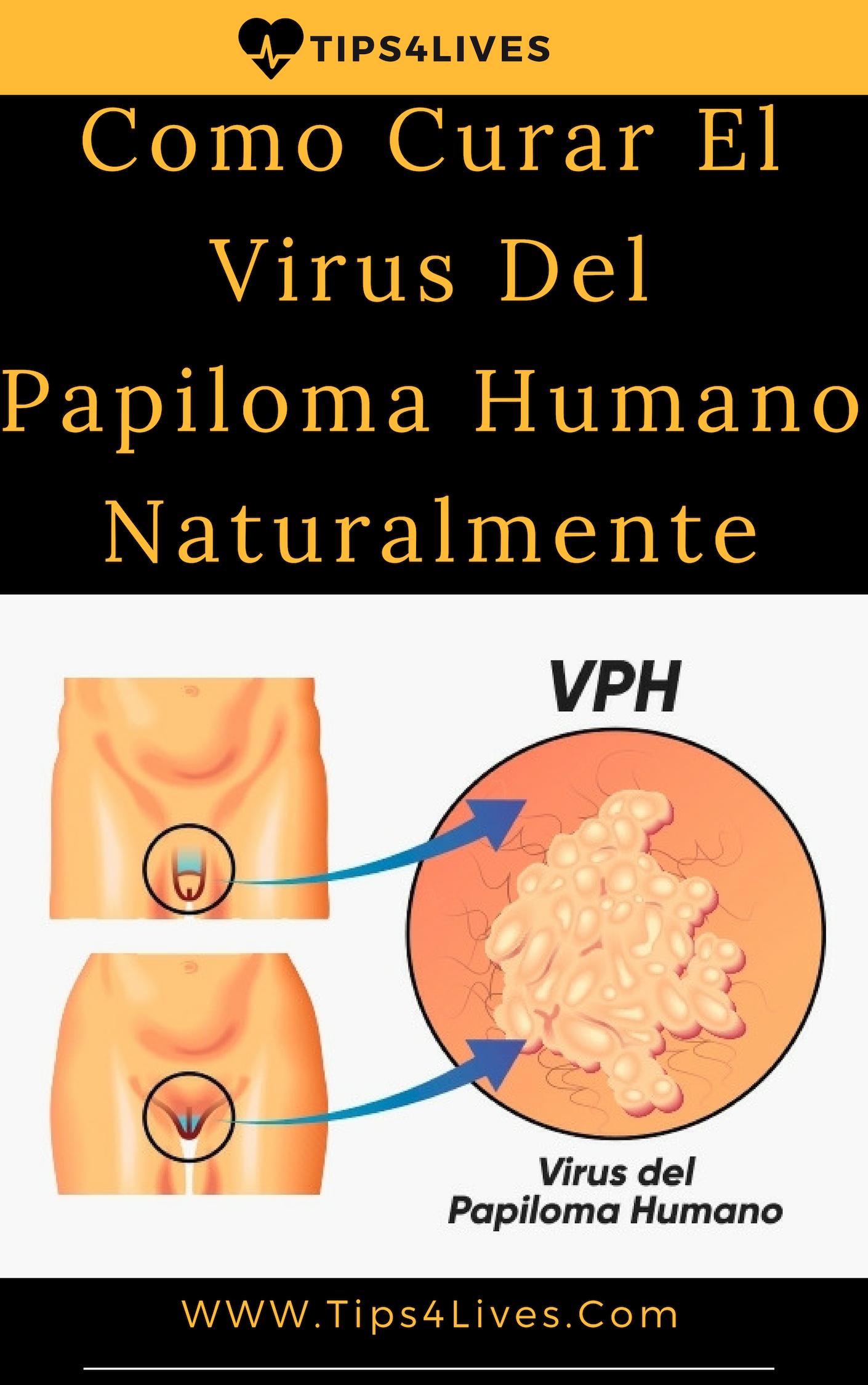 virus de papiloma humano no se cura