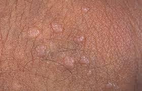 virus del papiloma humano genital en hombres