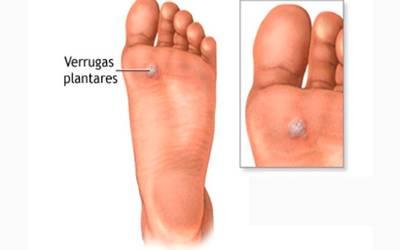 virus del papiloma humano verrugas en el pie