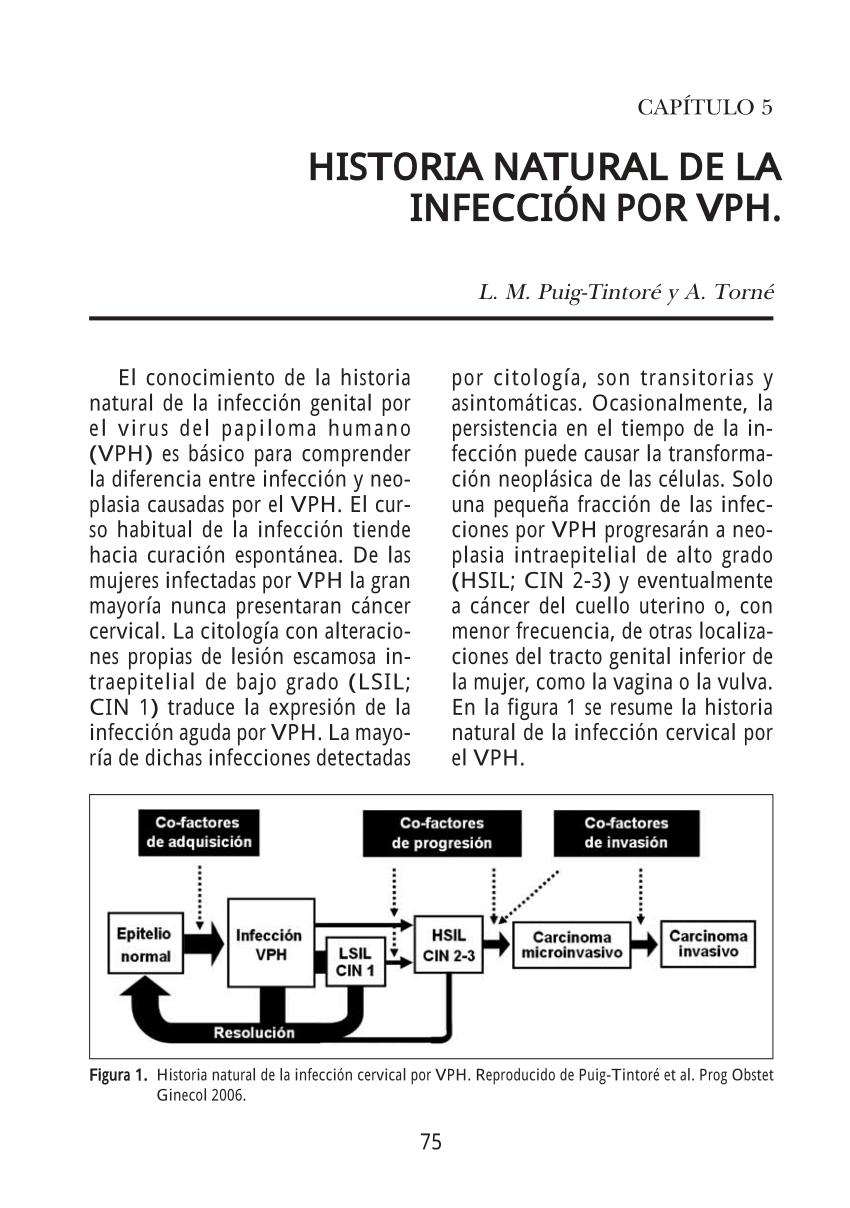 inverted papilloma nasal pathology