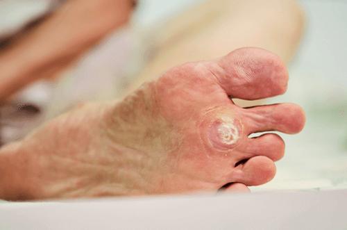 wart on foot reason