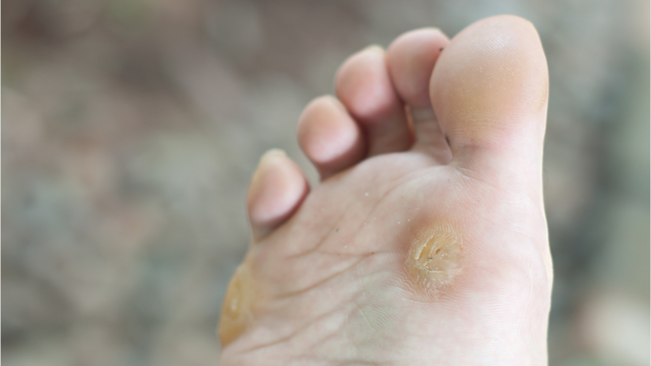 wart virus on foot tongue papillae treatment